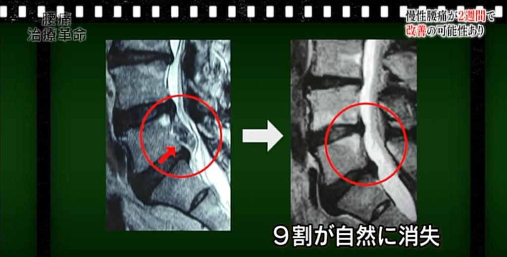 慢性腰痛が得意な栃木県佐野市バースデーカイロプラクティックの腰痛情報用画像4