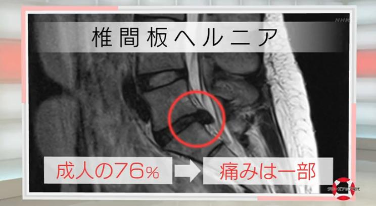 慢性腰痛が得意な栃木県佐野市バースデーカイロプラクティックの腰痛情報用画像3